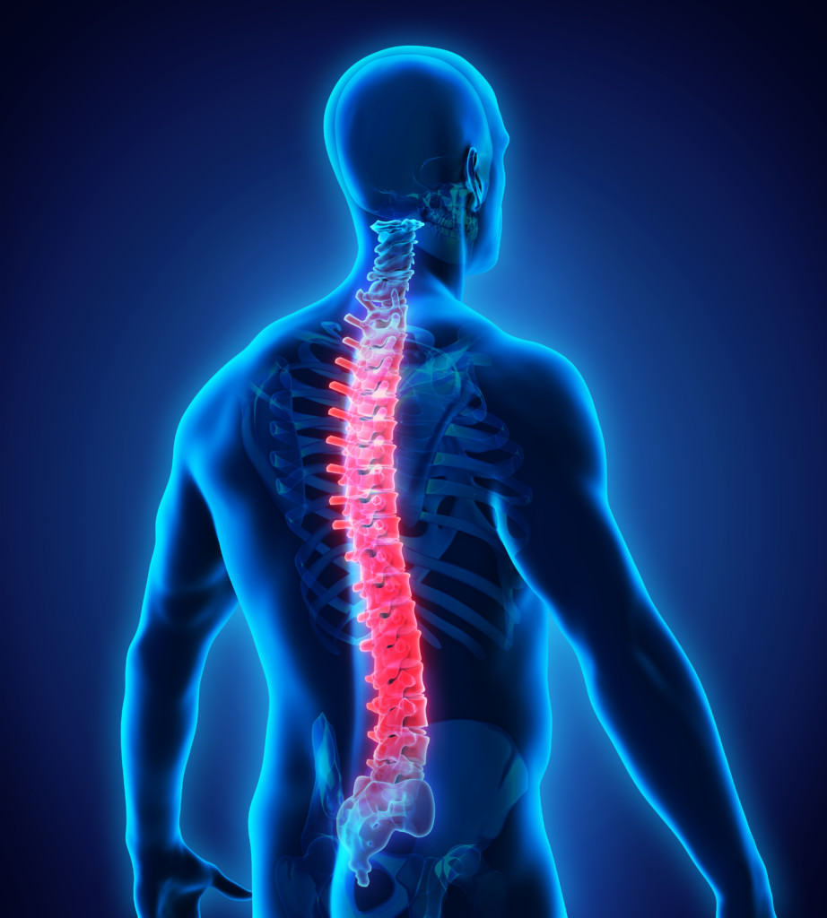 What Is The Average Settlement For A Back Injury?